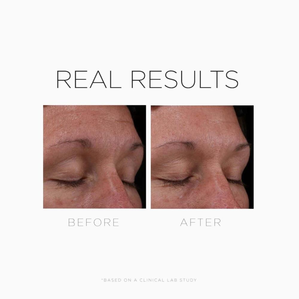 COSMEDIX Serum 16 Rapid Renewal Serum odżywczy koncentrat z retinolem dla każdej skóry 30ml